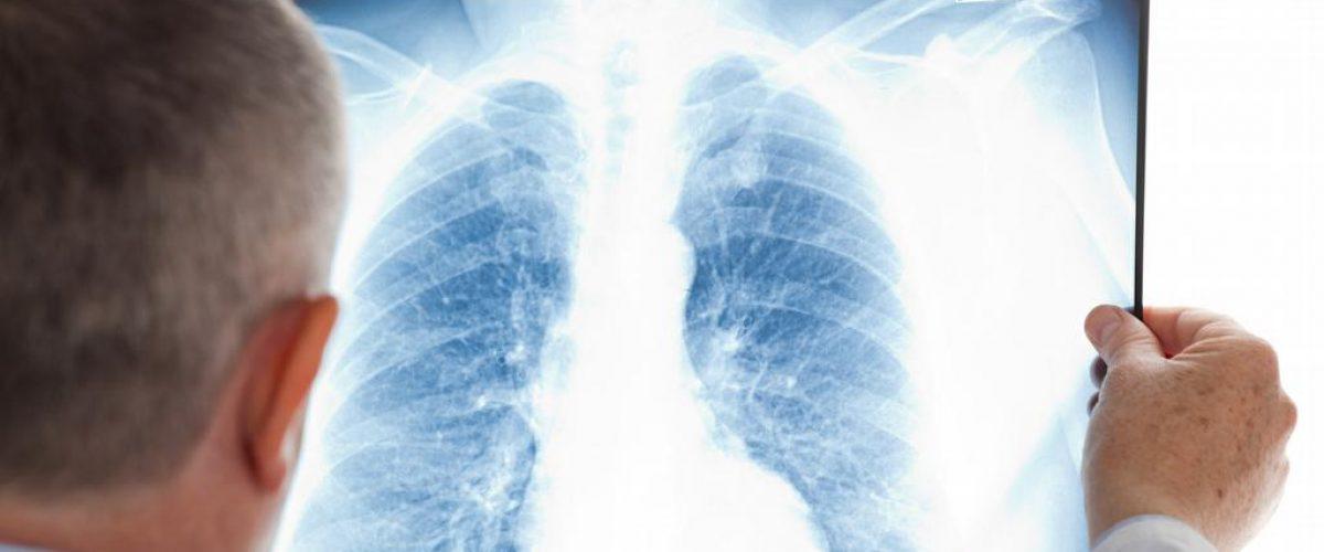 Você conhece a embolia pulmonar?