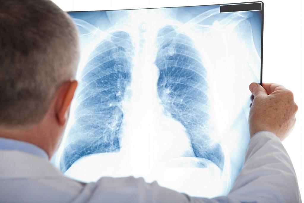 casa de repouso - voce conhece a embolia pulmonar