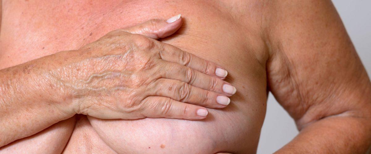 Prevenção do câncer de mama e a importância do autoexame e exames de rotina