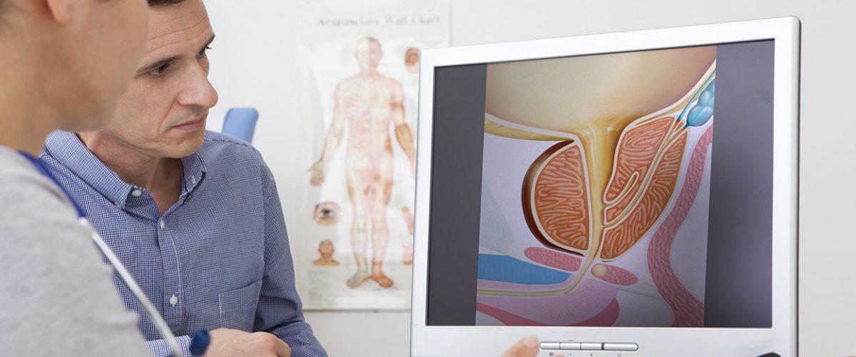 Como a tecnologia ajuda no diagnóstico e tratamento do câncer de próstata